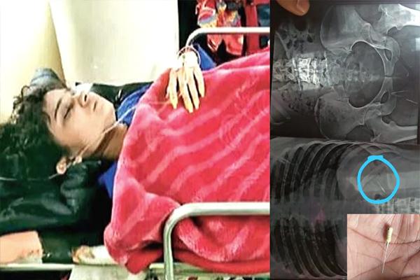 OMG: दांतों का इलाज कराने गई युवती के पेट में चली गई सुई, PGI रेफर