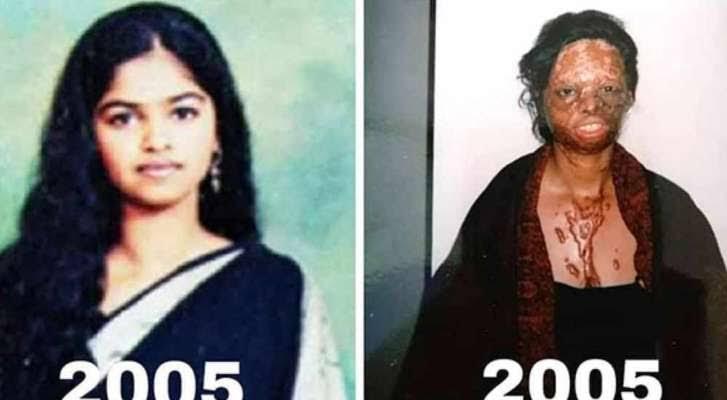 लक्ष्मी पर तेजाब फेंकने वाला दरिंदा था मुस्लिम युवक नदीम खान, फ़िल्म 'छपाक' में एसिड फेंकने वाले हैवान नदीम खान का नाम बदलकर हिन्दू नाम राजेश नही बल्कि बब्बू उर्फ़ बशीर खान रखा गया, सोशल मीडिया का दावा निकला फेक