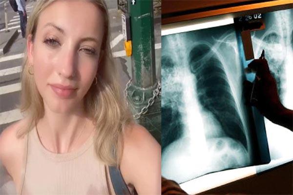 Read more about the article खांसी से परेशान युवती इलाज कराने गई थी डॉक्टर के पास, पता चली ऐसी बात कि उड़ गए होश